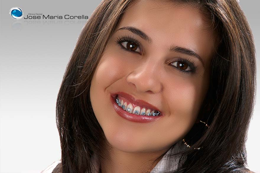 Ortodoncia Correctiva - Clínica Dental José María Corella