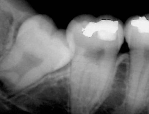 ¿Qué hacer cuando un diente no sale?