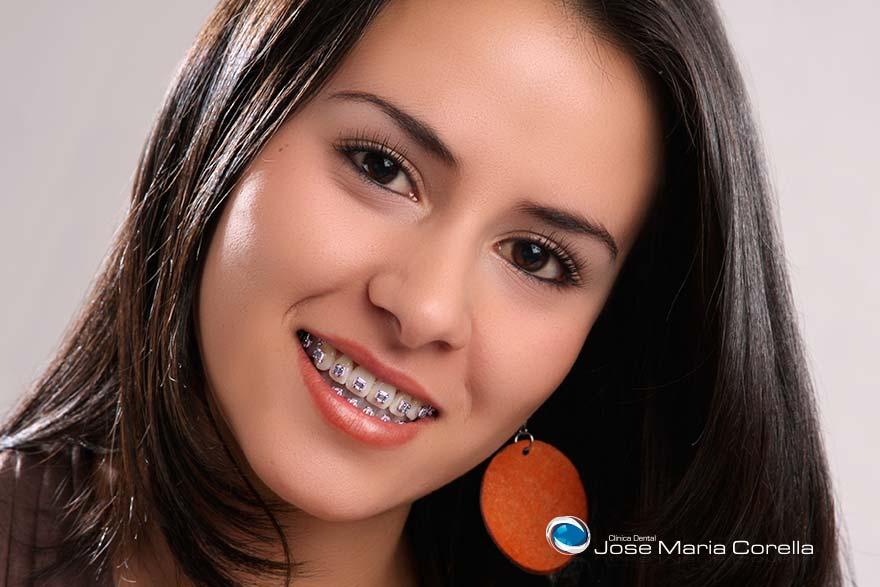 Ortodoncia - Clínica Dental José María Corella