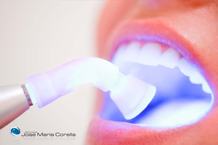 Blanqueamiento Dental - Clínica Dental Jose María Corella