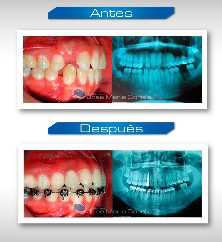 caso2-implantologia