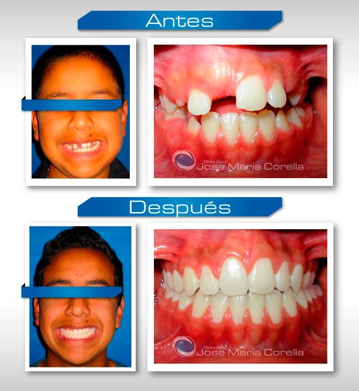 caso2-ortodoncia-correctiva